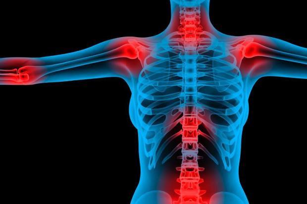 65 fibromialgia - 6516 - Como lidar com a Fibromialgia em 8 passos