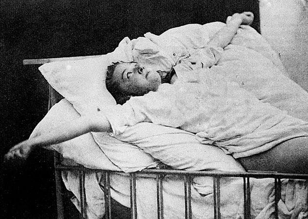 ataque epiléptico - convuls  es psicog  nicas - Ataque epilético ou convulsão psicogênica? Entenda a diferença desses fenômenos tão confundidos